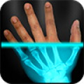 XRay Scanner Prank - Use fake X-rays to prank your friends