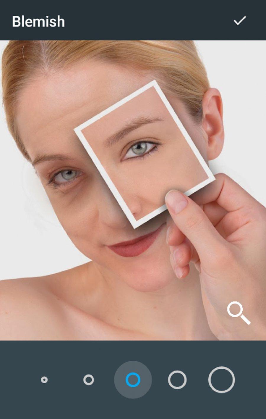 Лечение синяков под глазами в домашних условиях